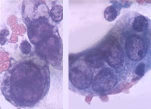 Хламидии, хламидиоз, понятие заболевания, способы заражения, лечение от хламидий.