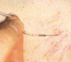 Сгусток крови в анализе крови из вены